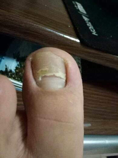 大脚拇指的指甲有凹痕