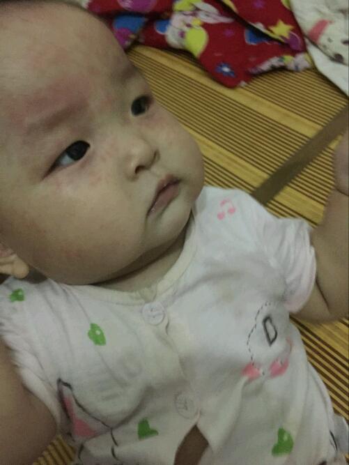 1楼 主题:关于幼儿急疹