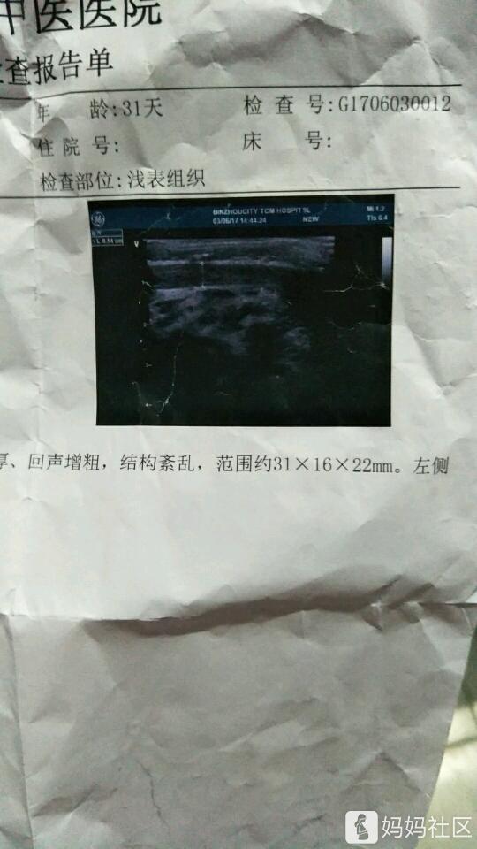 斜颈手术步骤图谱