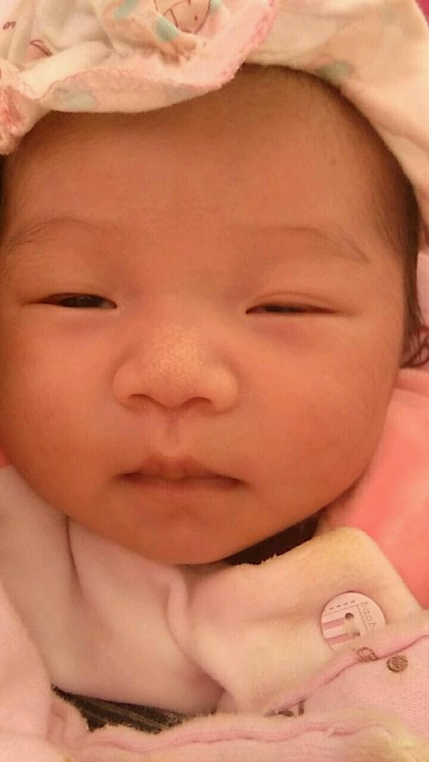 宝宝双眼皮单眼皮问题